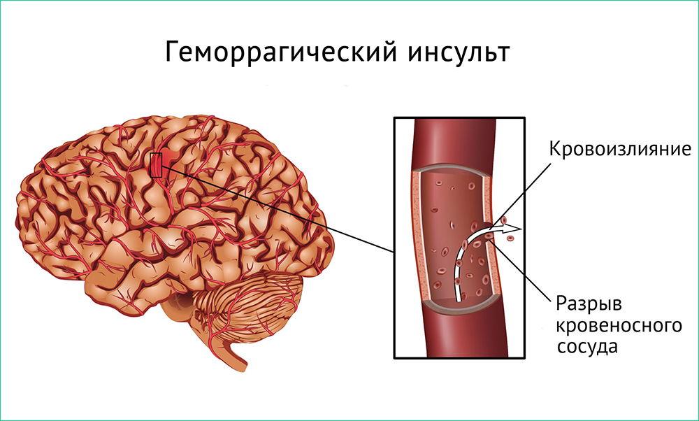 Геморрагический тип