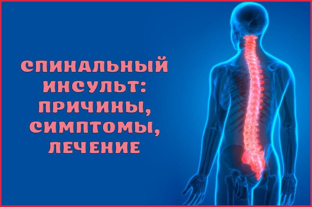 Инсульт спинного мозга (спинальный инсульт): симптомы, причины, лечение