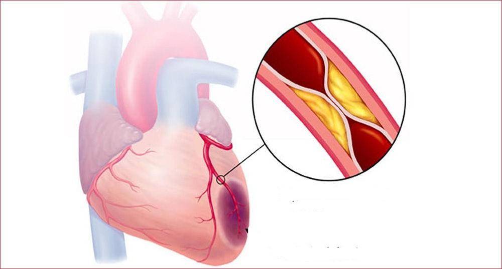 крупноочаговый трансмуральный инфаркт