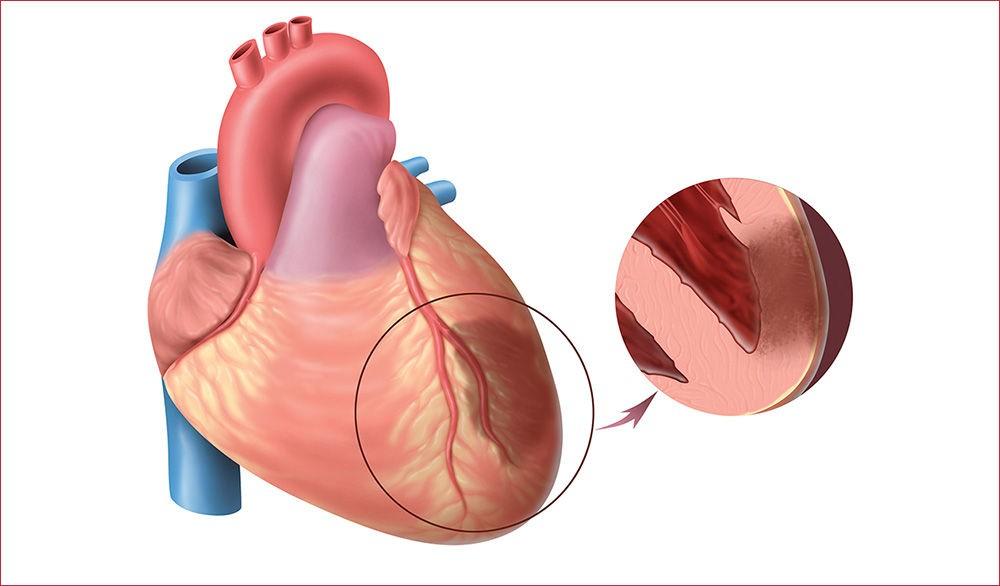 Поражение коронарных артерий