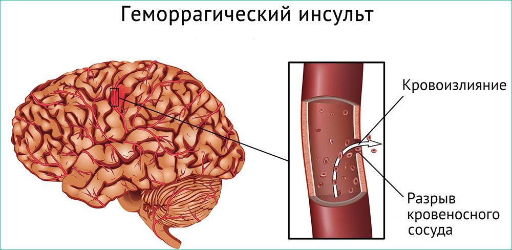 Принципгеморрагического инсульта