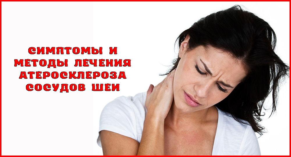 Атеросклероз сосудов шеи: симптомы, лечение