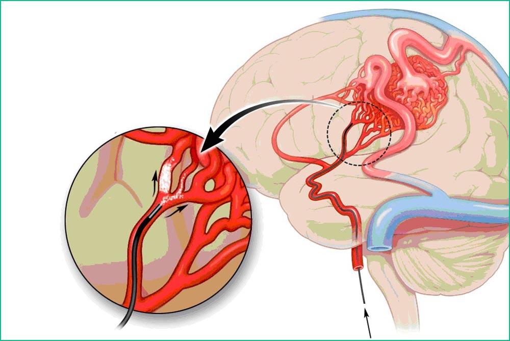 Эмболия головного мозга
