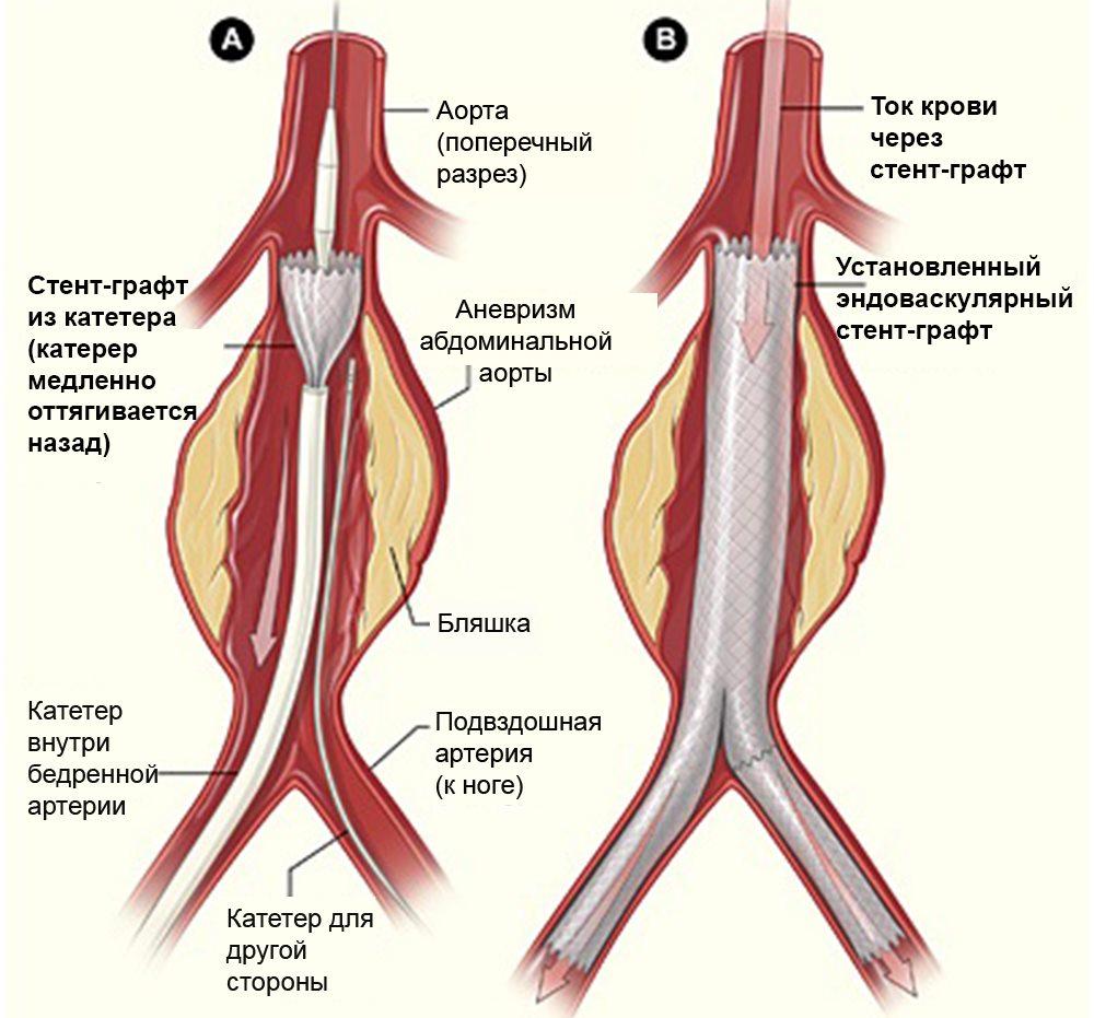 эндоваскулярная хирургия аневризмы аорты