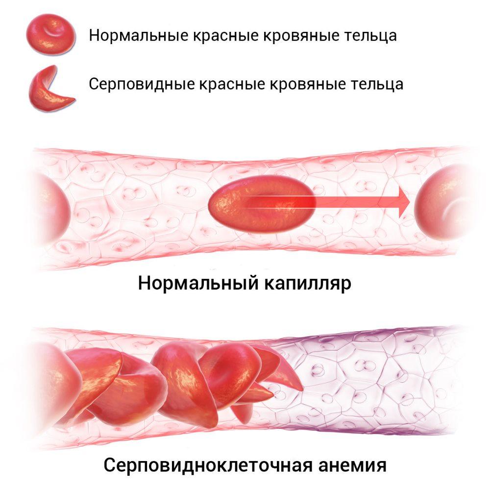 эритроциты серповидноклеточной анемии