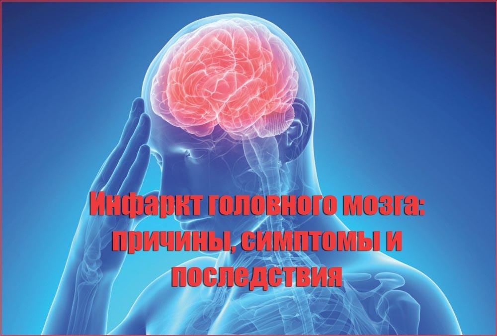 Инфаркт головного мозга: причины, симптомы и последствия