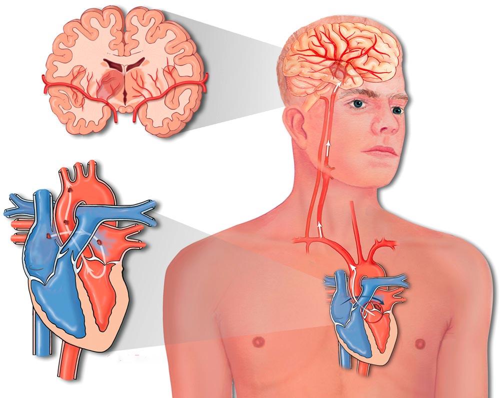 Инфаркт вызванный поражением сонной артерии