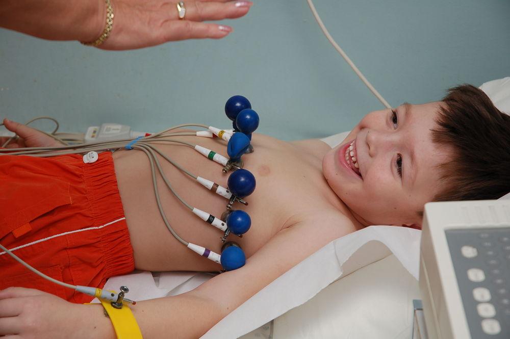 Брадикардия сердца у взрослых: что это такое, код по МКБ-10 и частота пульса, причины возникновения, симптомы и лечение синдрома, профилактика и последствия