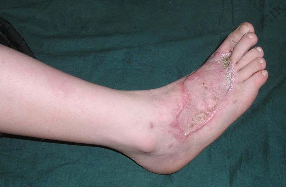 Некроз тканей ноги