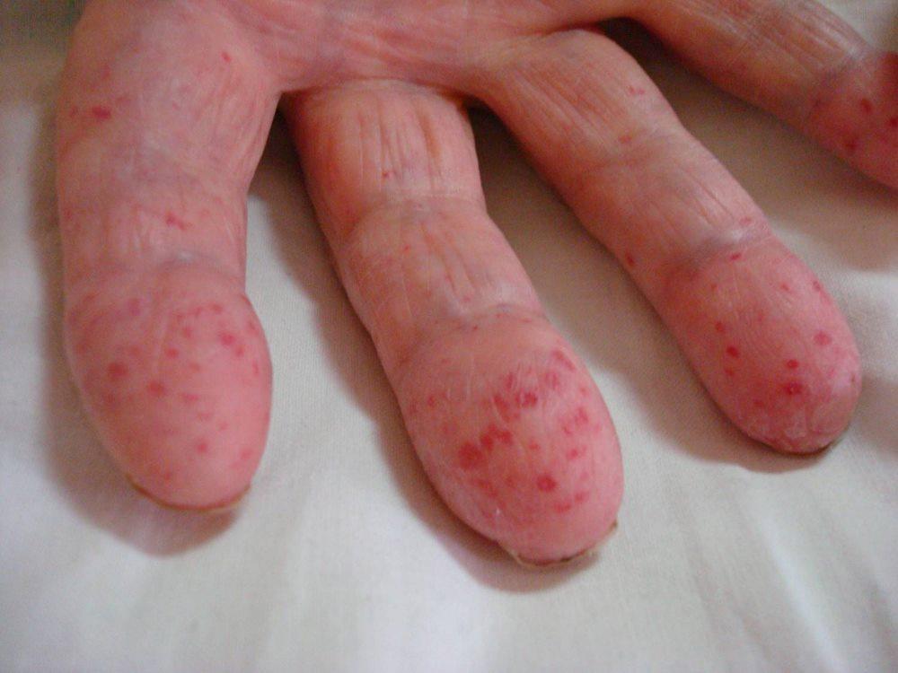 опухшие кисти при анемии