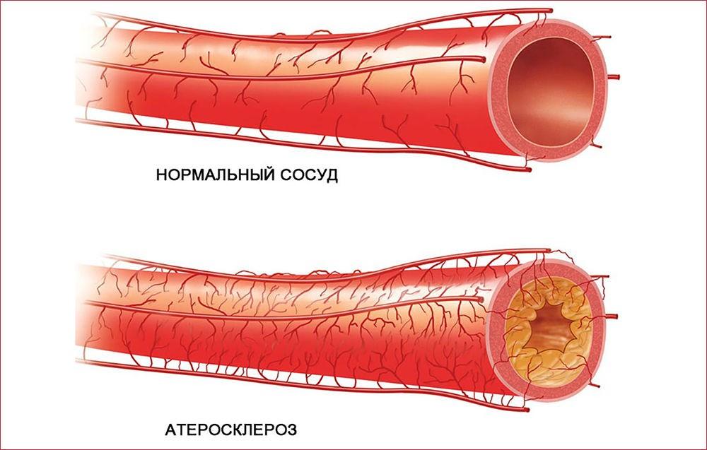 Основы развития болезни