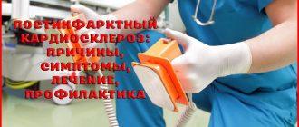 Постинфарктный кардиосклероз и его лечение