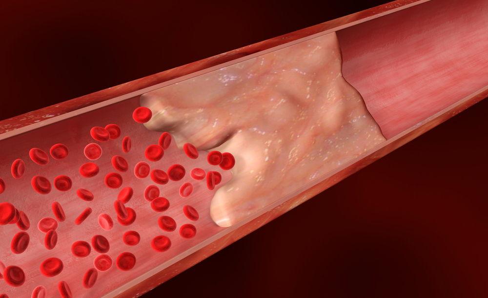 Процесс образования тромба