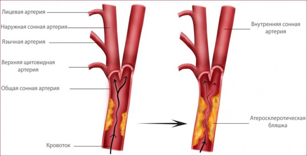 Стеноз сонных артерий