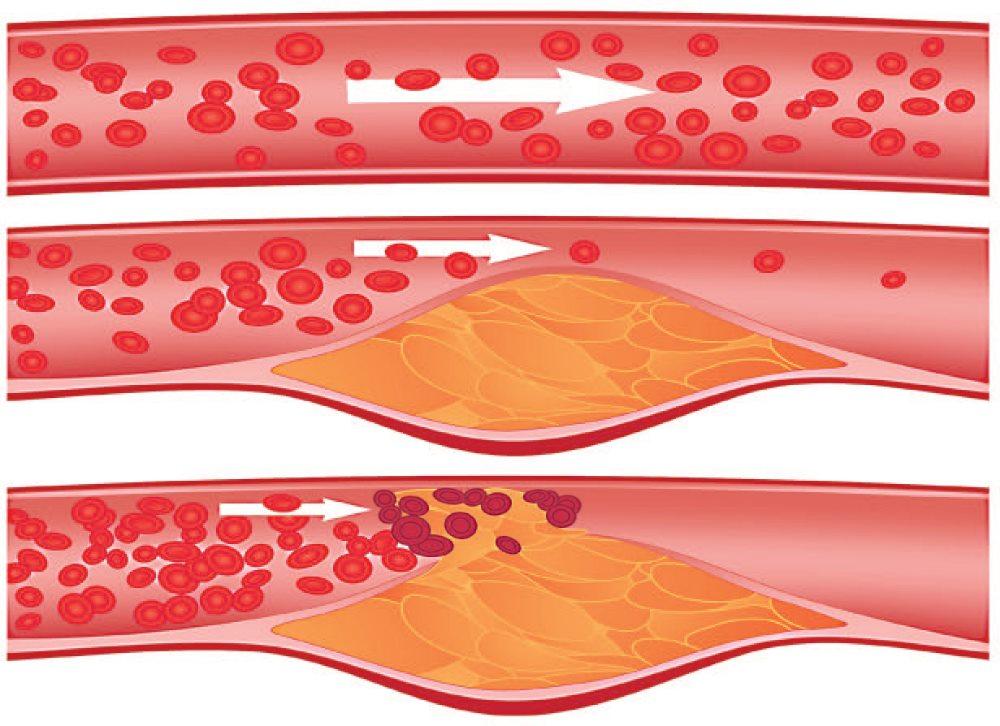 стенозирующий атеросклероз сосудов