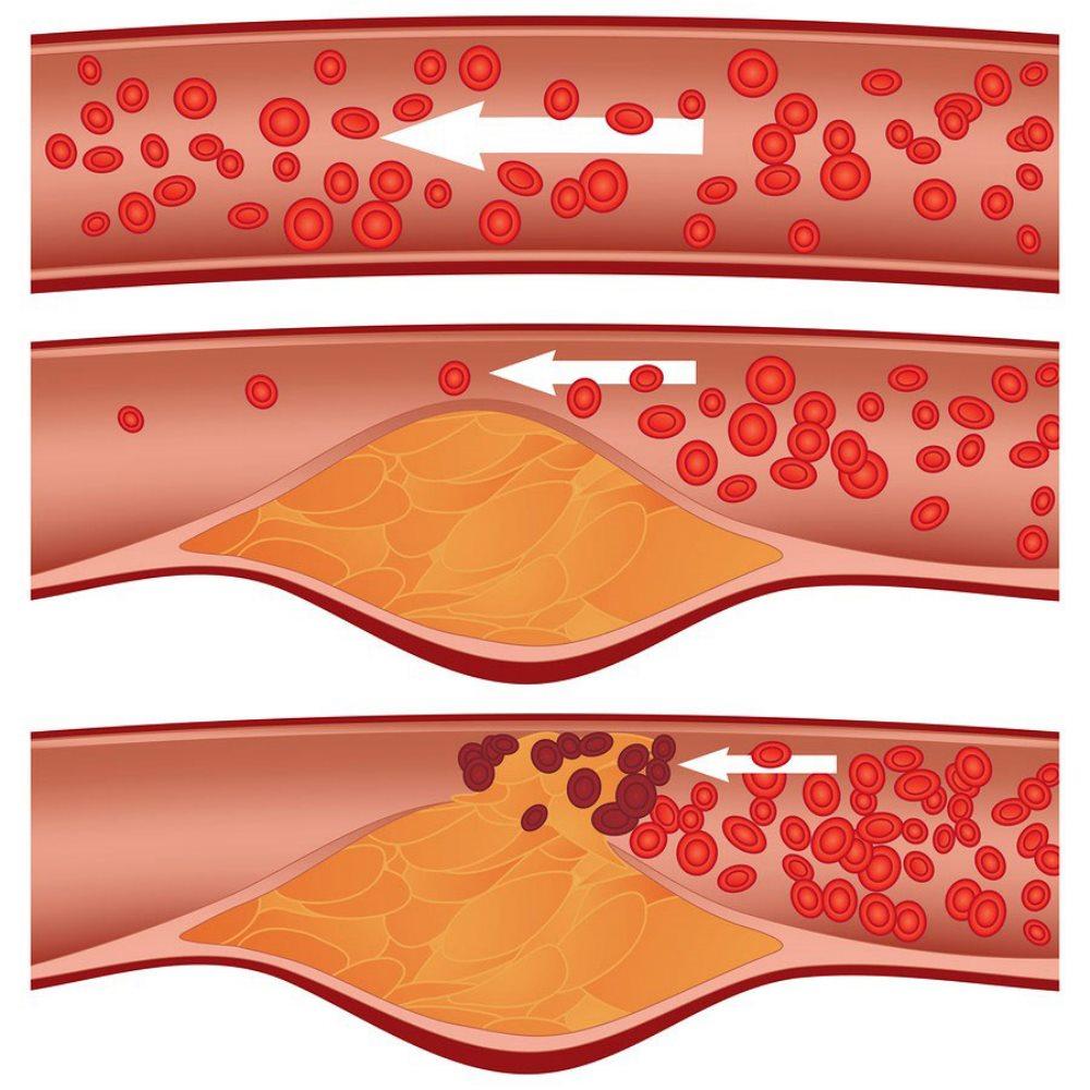 сужение сосуда при облитилирующем атеросклерозе