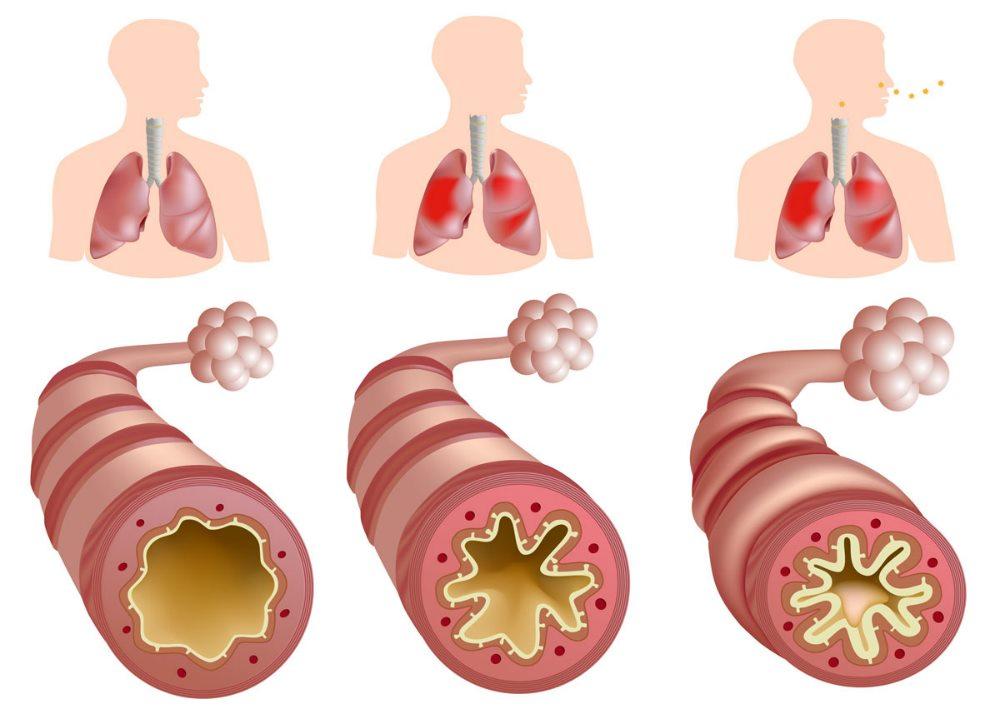 атеросклероз сосудов легких