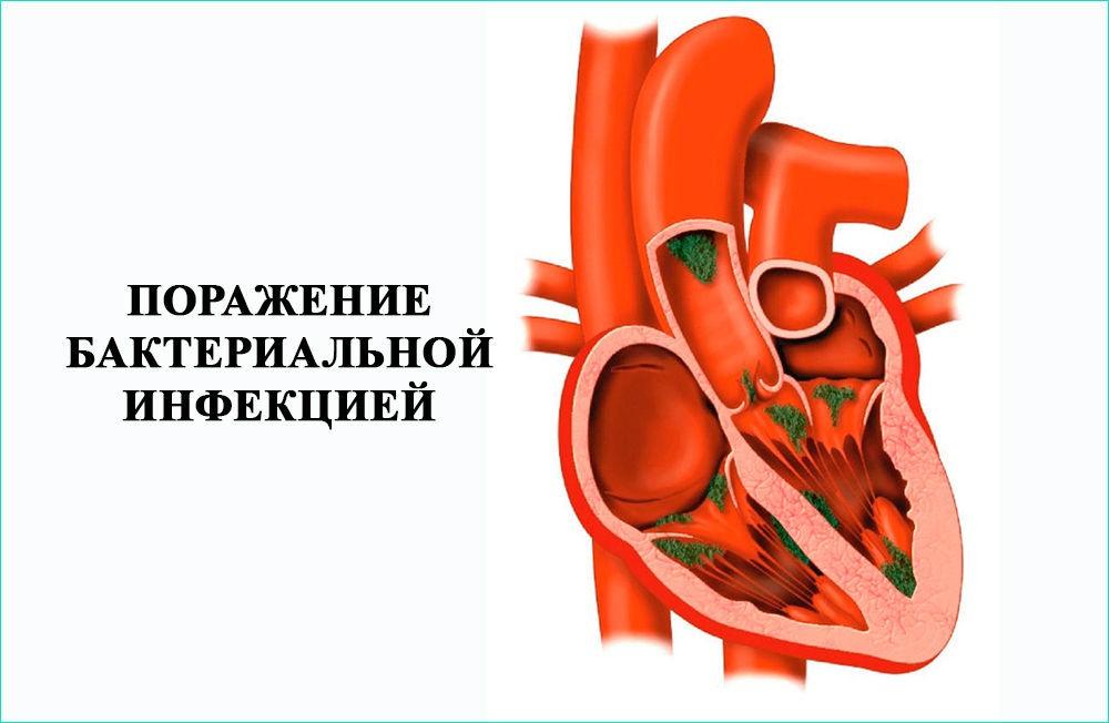 Поражение сердца бактериальной инфекцией