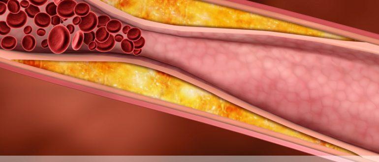 холестерин лпвп повышенный