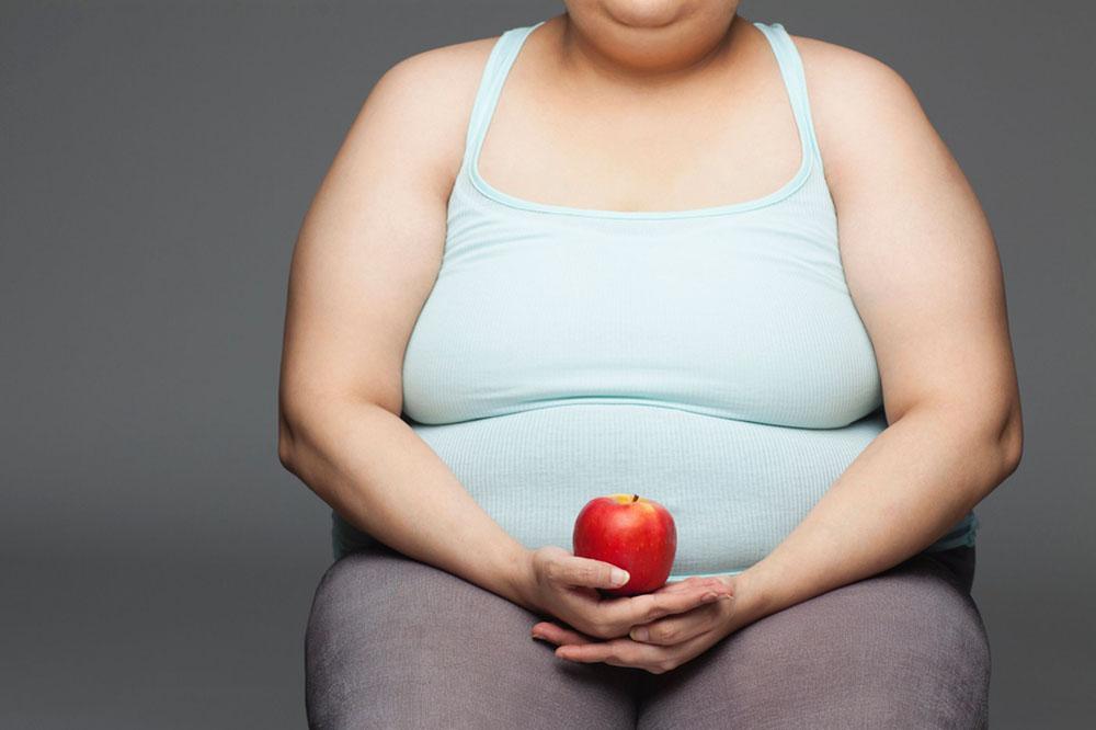 Ожирение