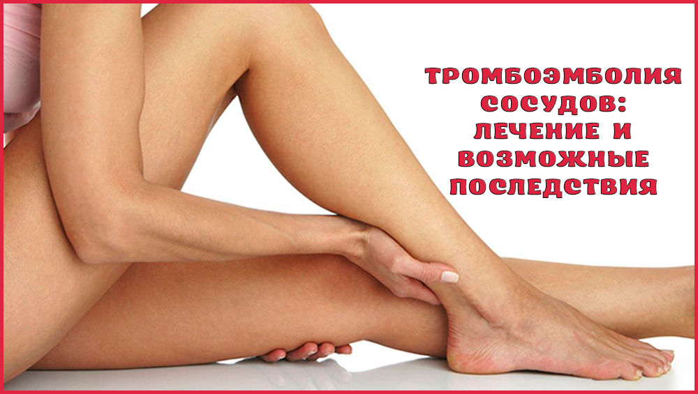 Последствия и лечение тромбоэмболии сосудов