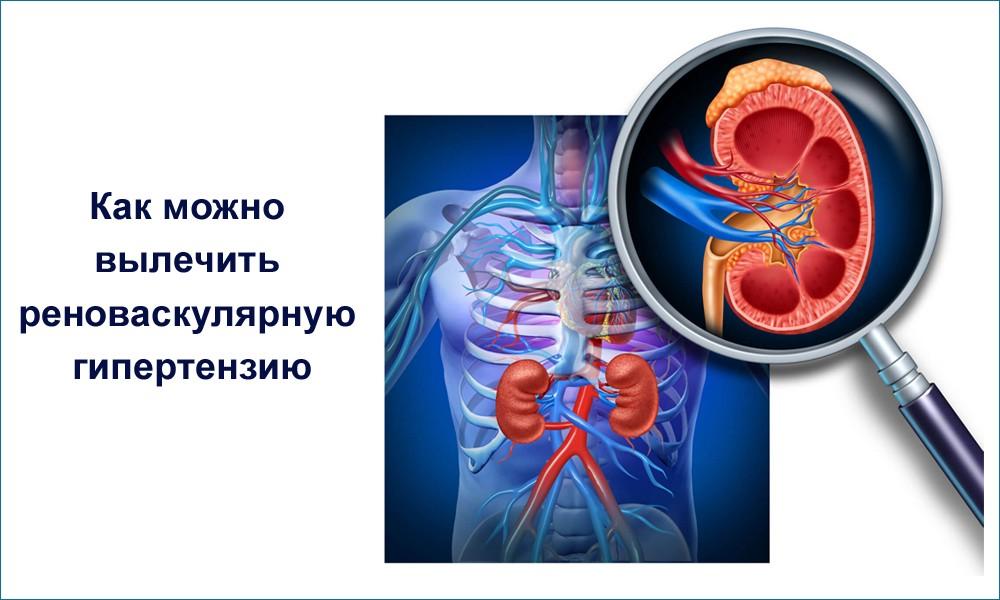 Реноваскулярная артериальная гипертензия