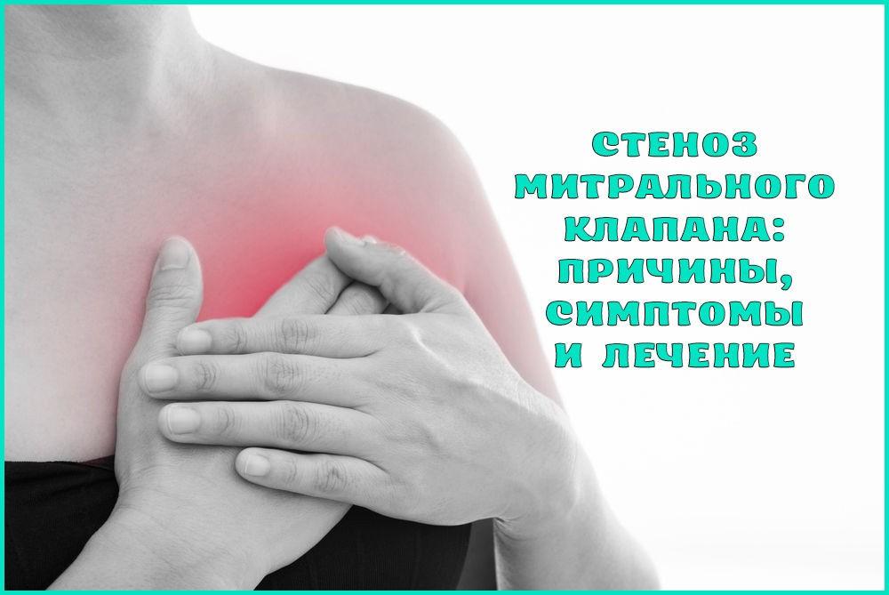Симптомы и лечение митрального стеноза (стеноз митрального клапана)