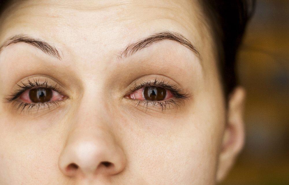 слепота одного или обоих глаз