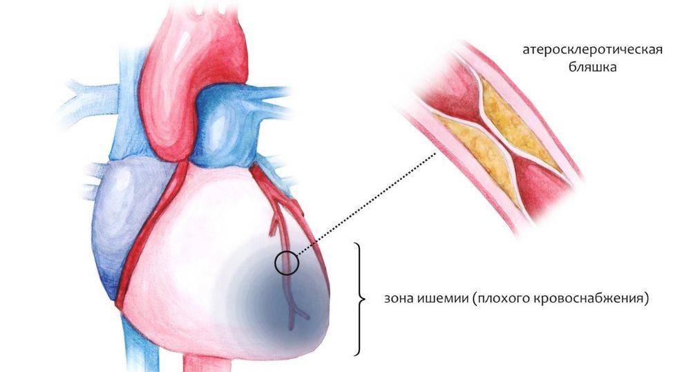 стенокардия и ишемия