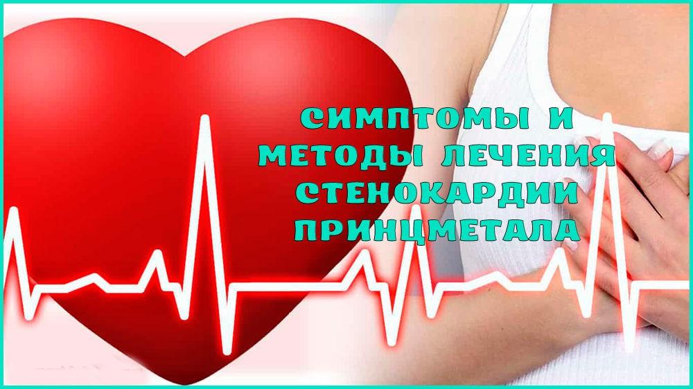 Стенокардия Принцметала: симптомы и лечение