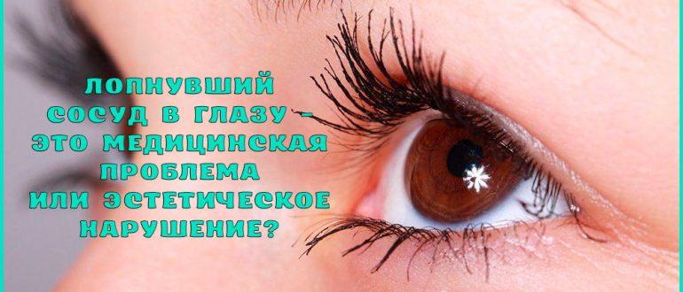 Что делать, если лопнул капилляр в глазу