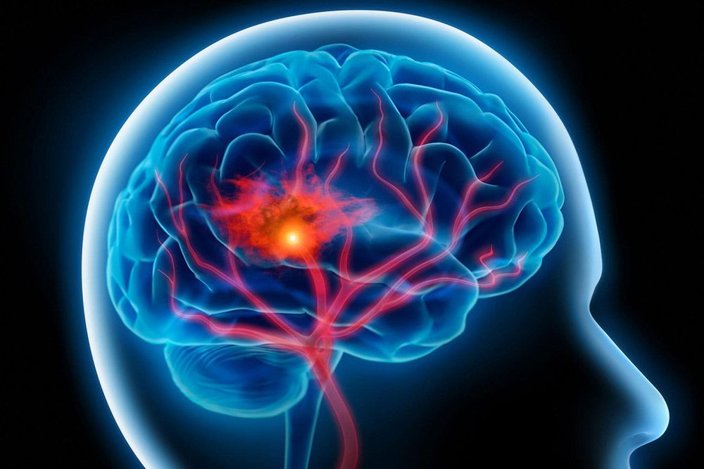 Нарушение кровоснабжения головного мозга