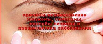 Причины, симптомы, лечение и профилактика глаукомы