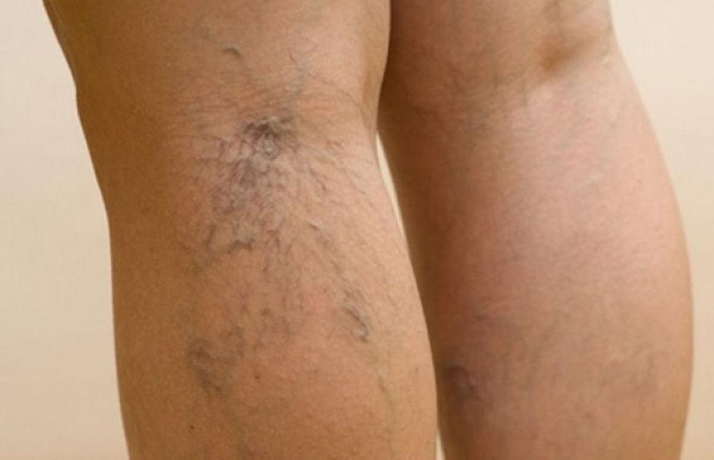 Проявления сосудистой сетки на ногах