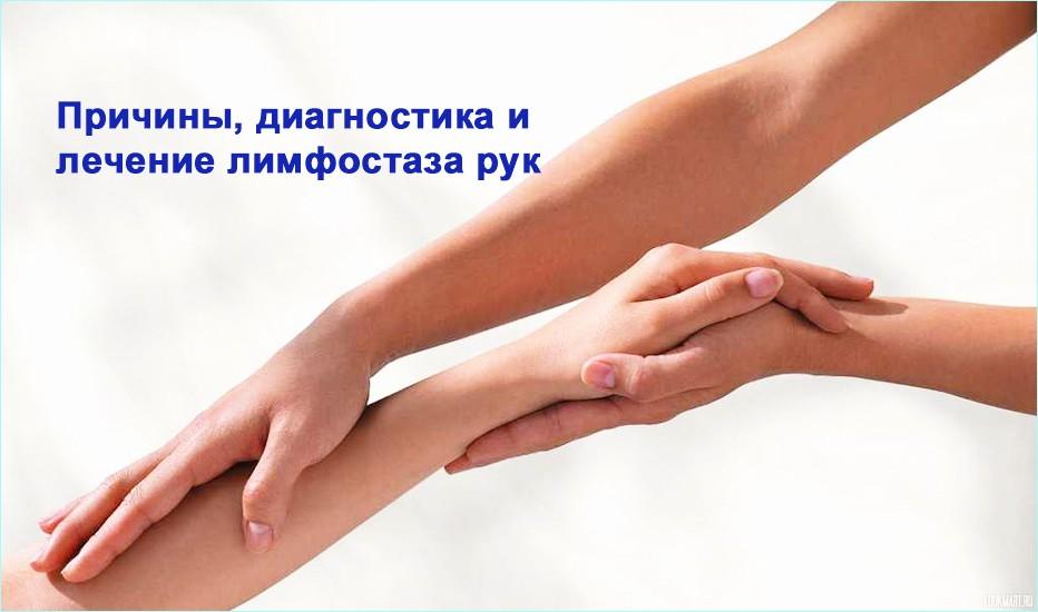 Лечение при лимфостазе рук