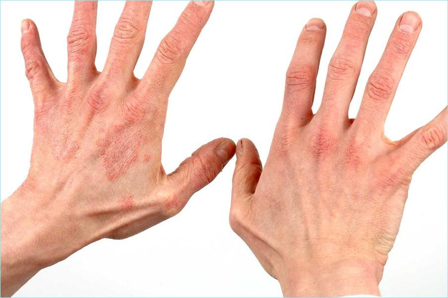 Рожистые воспаления на руках