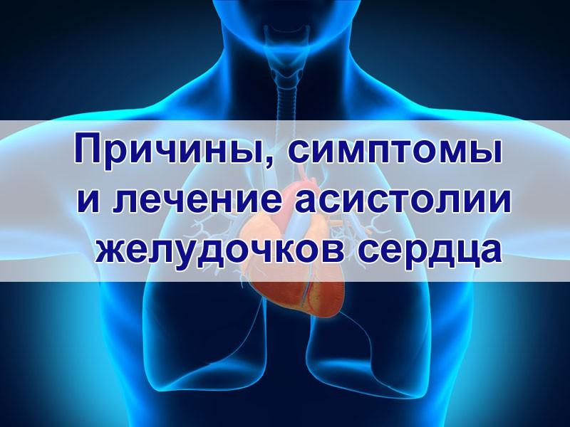 Асистолия желудочков сердца