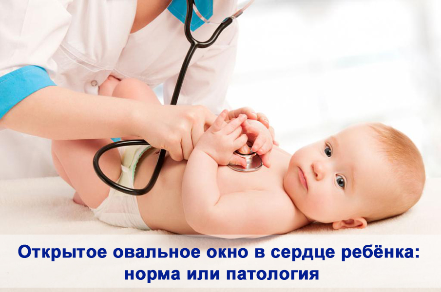Открытое овальное окно в сердце ребёнка