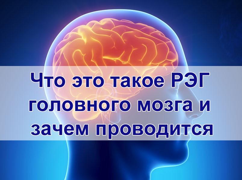 Что это такое РЭГ головного мозга