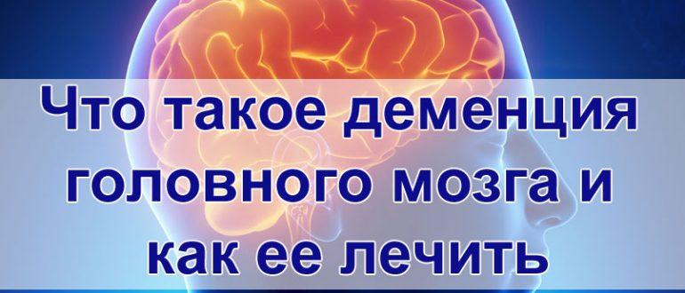Деменция головного мозга