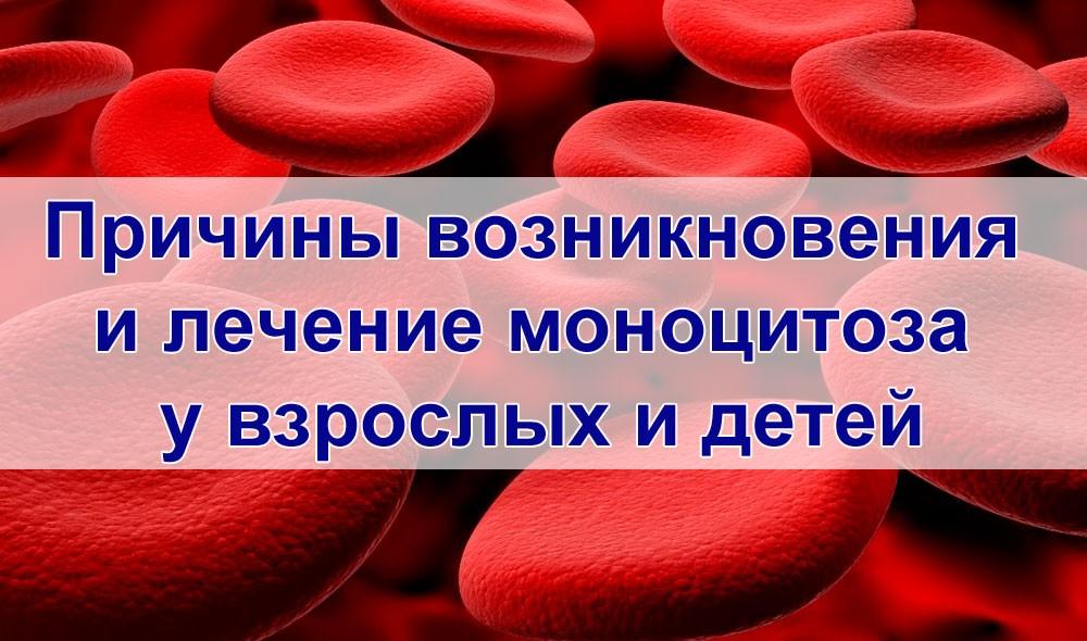 Лечение моноцитоза