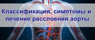 Лечение расслоения аорты