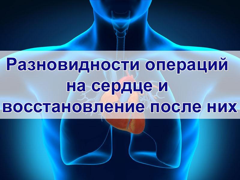 Разновидности операций на сердце и восстановление после них