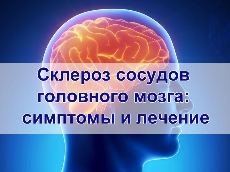 Склероз головного мозга