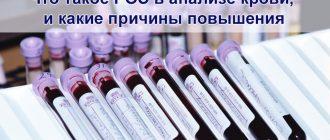 Что такое РОЭ в анализе крови
