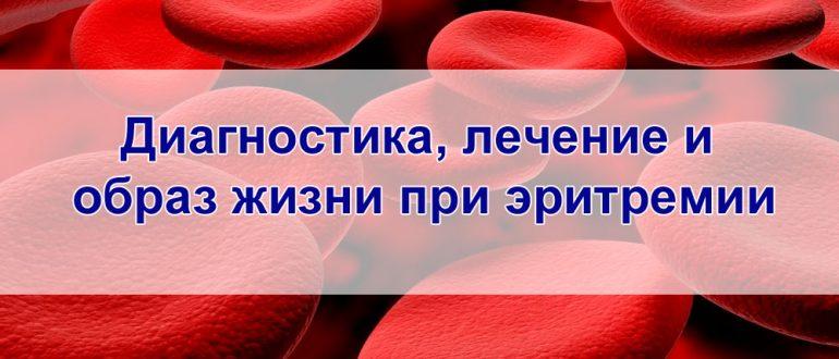 Лечение и образ жизни при эритремии