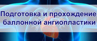 Подготовка и прохождение баллонной ангиопластики