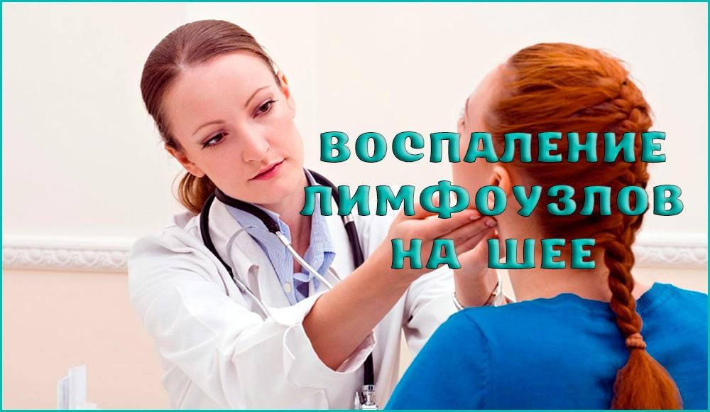 Причины, симптомы и лечение воспаления лимфоузлов на шее