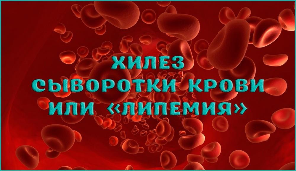 Причины возникновения и методы лечение хилеза крови