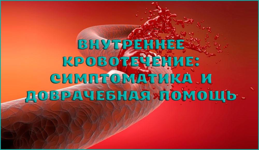 Как распознать и что делать при внутреннем кровотечении